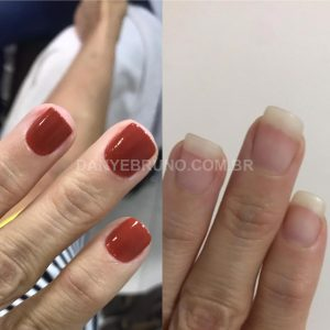 Unhas mais fortes e firmes com o uso do Narra